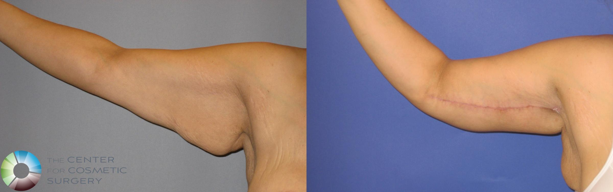 Arm Lift Case 126 Before & After View #1 | Golden, CO | The Center for Cosmetic Surgery