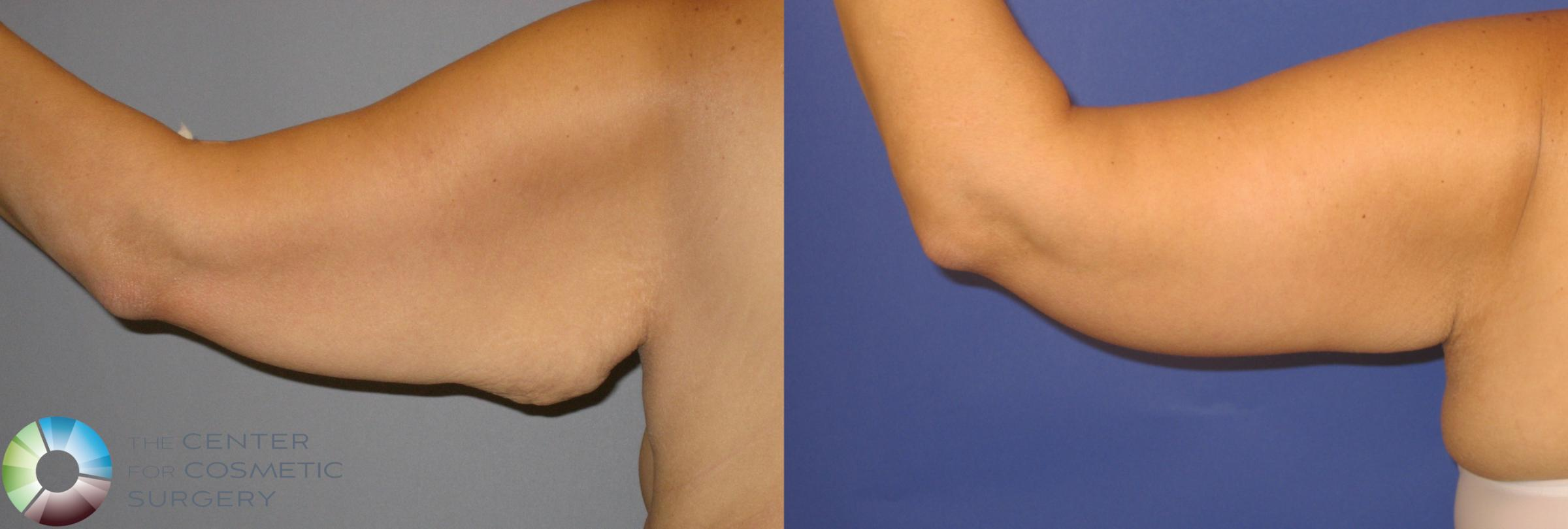Arm Lift Case 126 Before & After View #2 | Golden, CO | The Center for Cosmetic Surgery