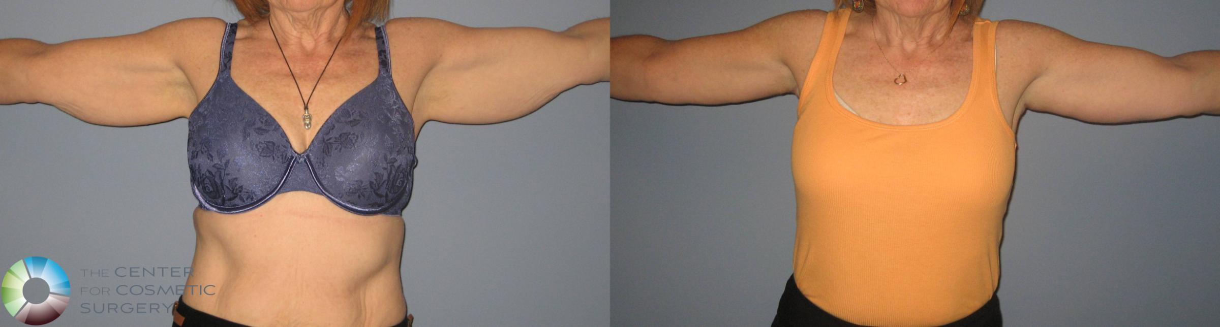 Arm Lift Case 441 Before & After View #1 | Golden, CO | The Center for Cosmetic Surgery