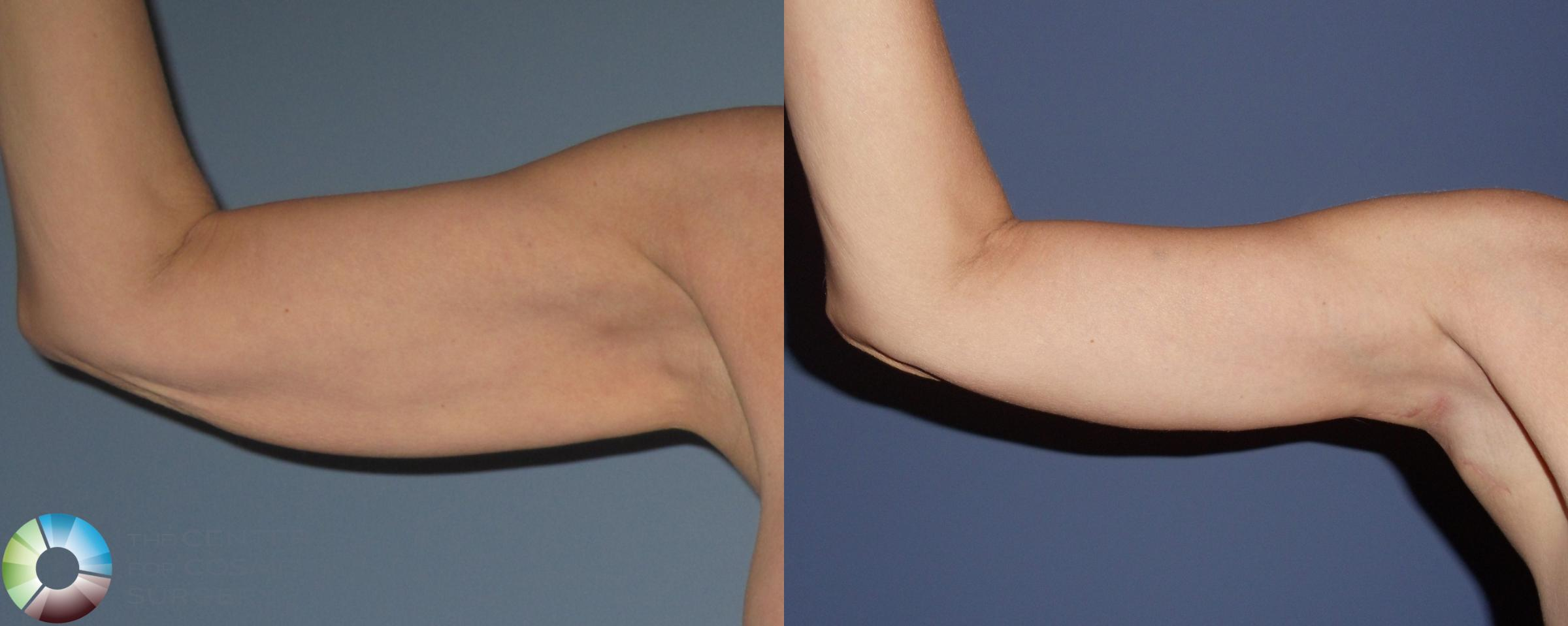 Arm Lift Case 442 Before & After View #1 | Golden, CO | The Center for Cosmetic Surgery