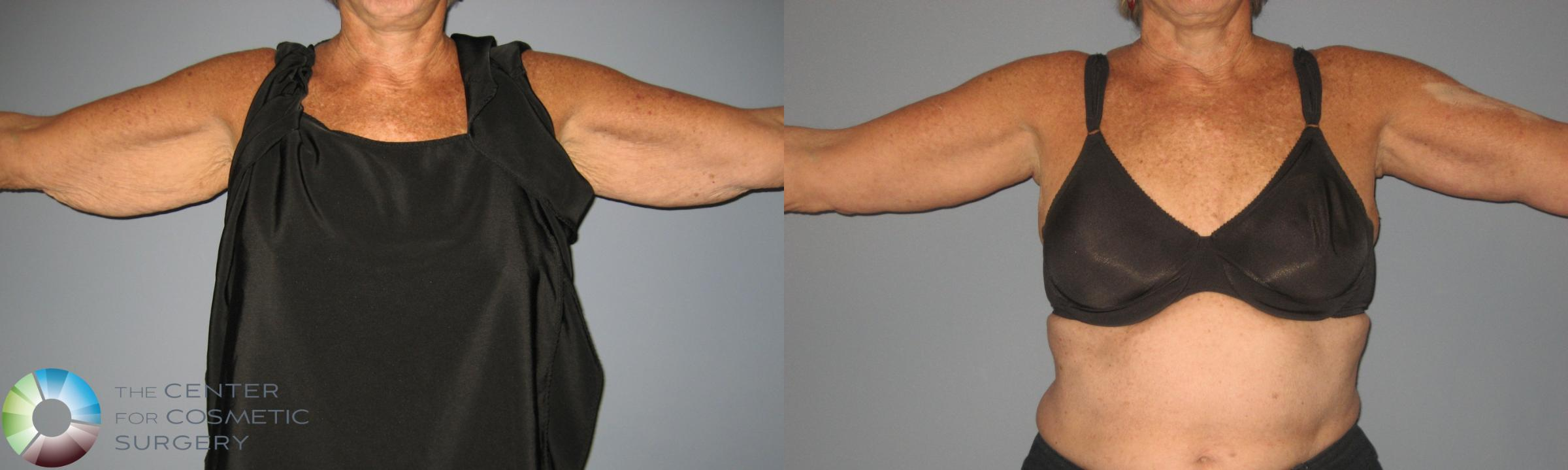 Arm Lift Case 450 Before & After View #1 | Golden, CO | The Center for Cosmetic Surgery