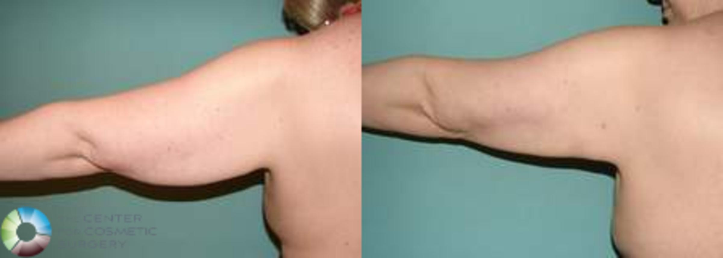 Arm Lift Case 539 Before & After View #1 | Golden, CO | The Center for Cosmetic Surgery