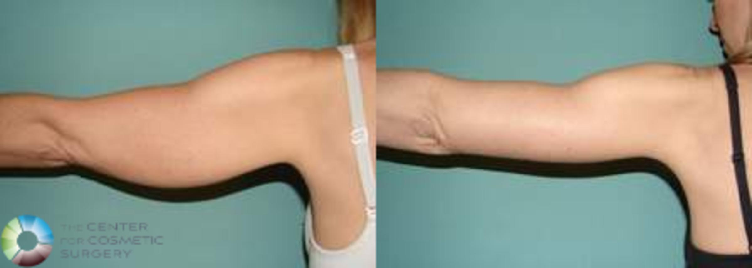 Arm Lift Case 628 Before & After View #1 | Golden, CO | The Center for Cosmetic Surgery