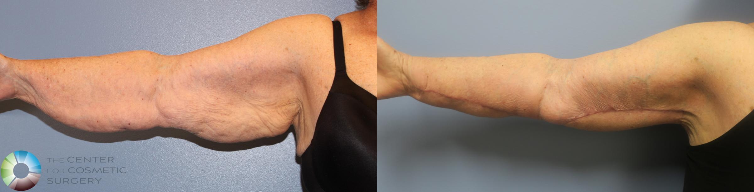 Arm Lift Case 839 Before & After View #1 | Golden, CO | The Center for Cosmetic Surgery