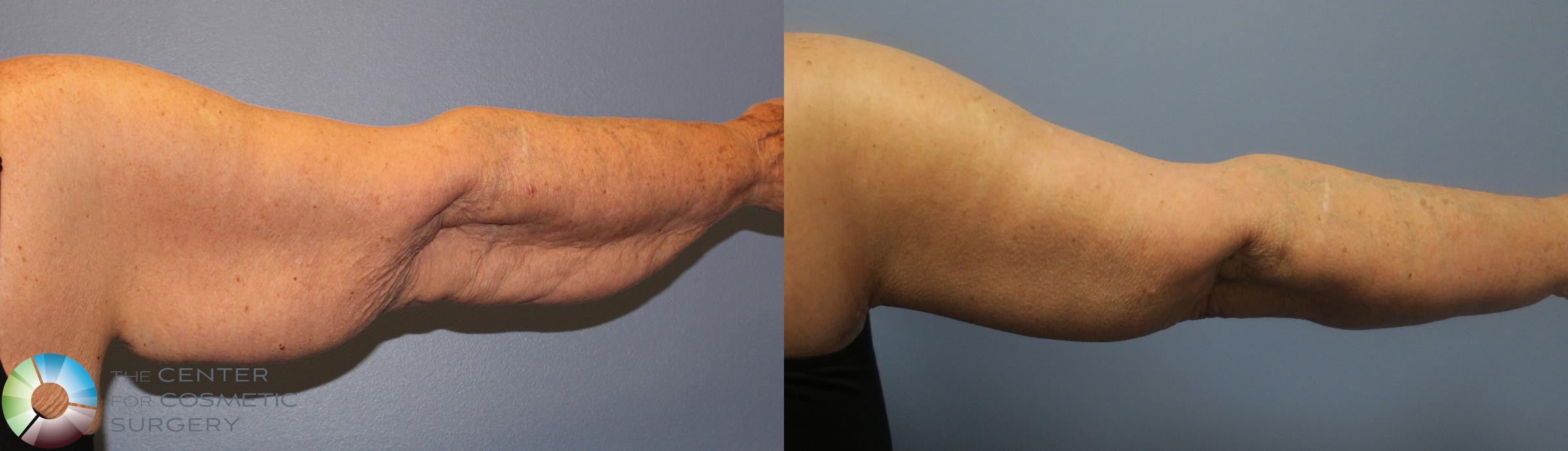 Arm Lift Case 839 Before & After View #2 | Golden, CO | The Center for Cosmetic Surgery