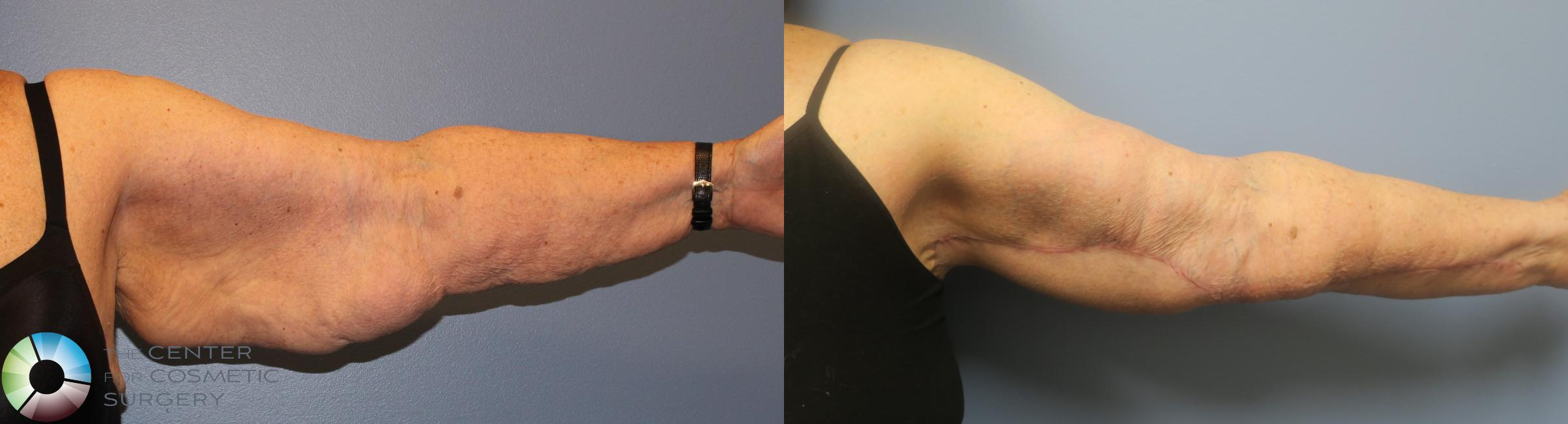 Arm Lift Case 839 Before & After View #3 | Golden, CO | The Center for Cosmetic Surgery