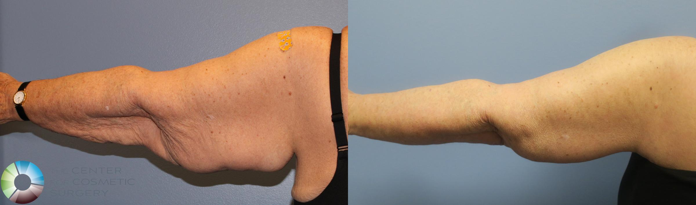 Arm Lift Case 839 Before & After View #4 | Golden, CO | The Center for Cosmetic Surgery
