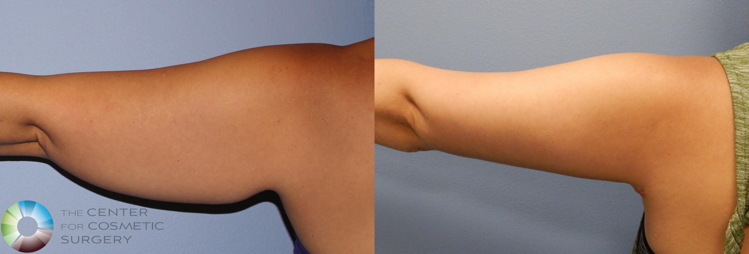 Arm Lift Case 886 Before & After View #1 | Golden, CO | The Center for Cosmetic Surgery