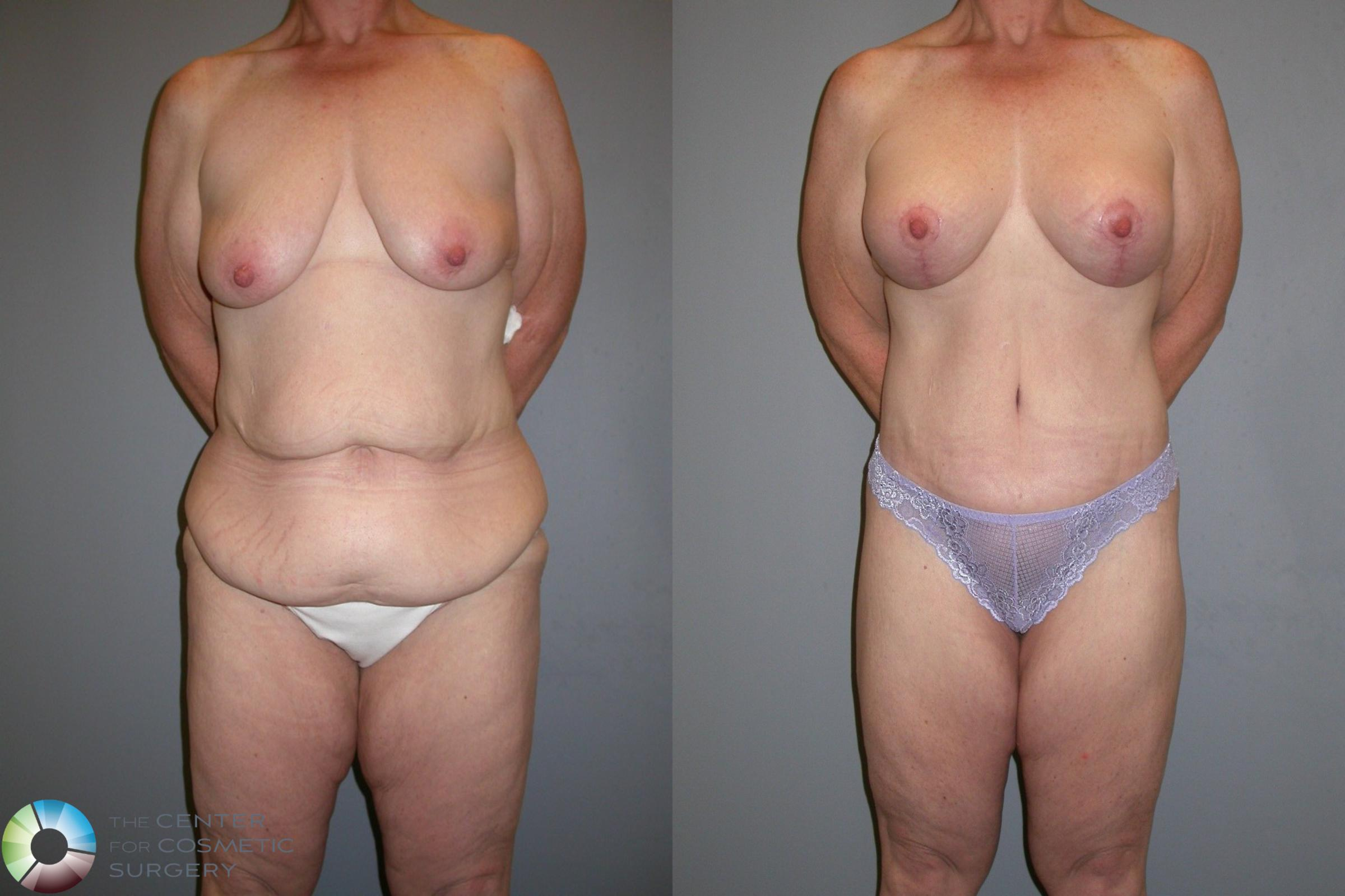 Body Lift Case 105 Before & After View #1 | Golden, CO | The Center for Cosmetic Surgery