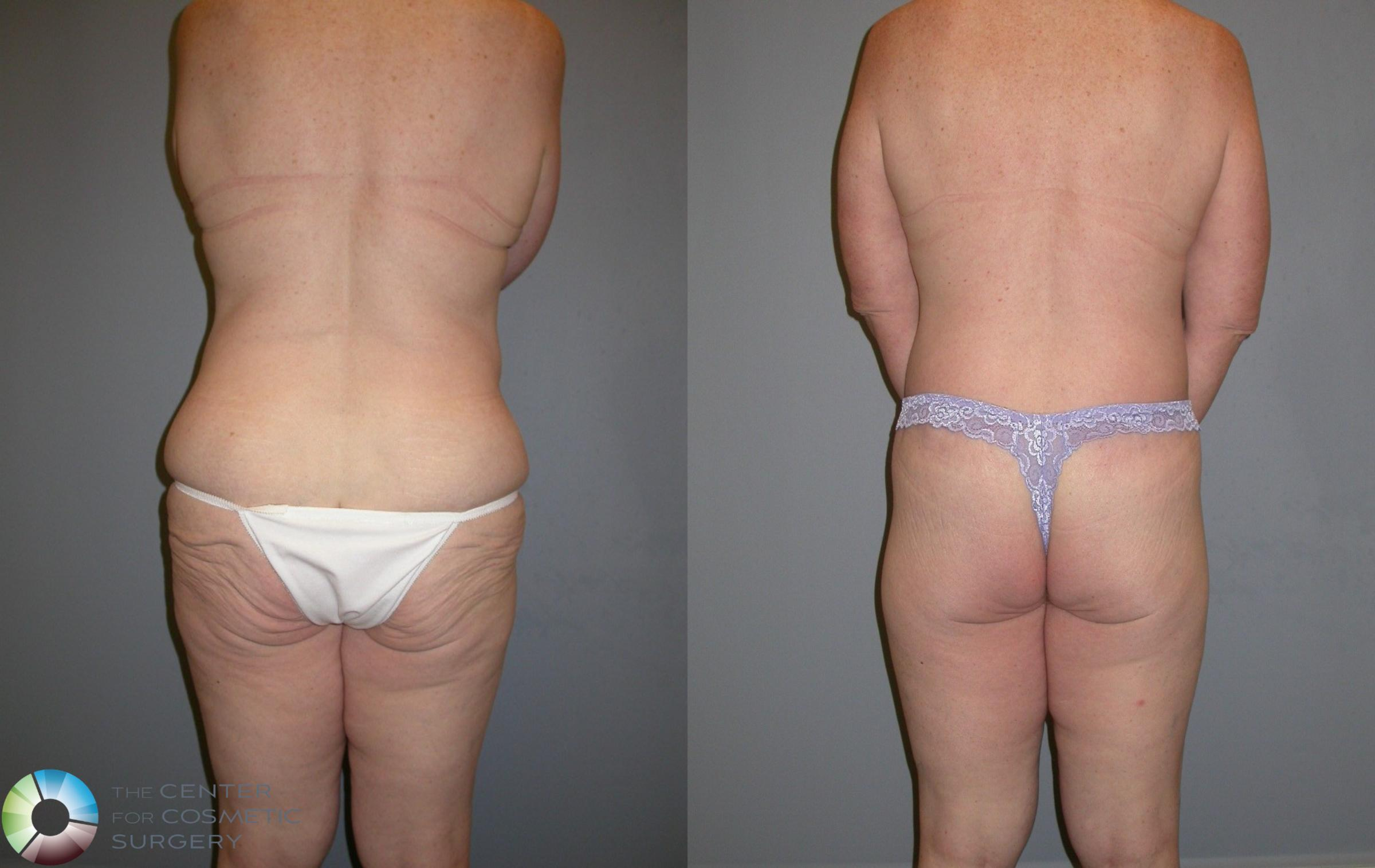 Body Lift Case 105 Before & After View #2 | Golden, CO | The Center for Cosmetic Surgery
