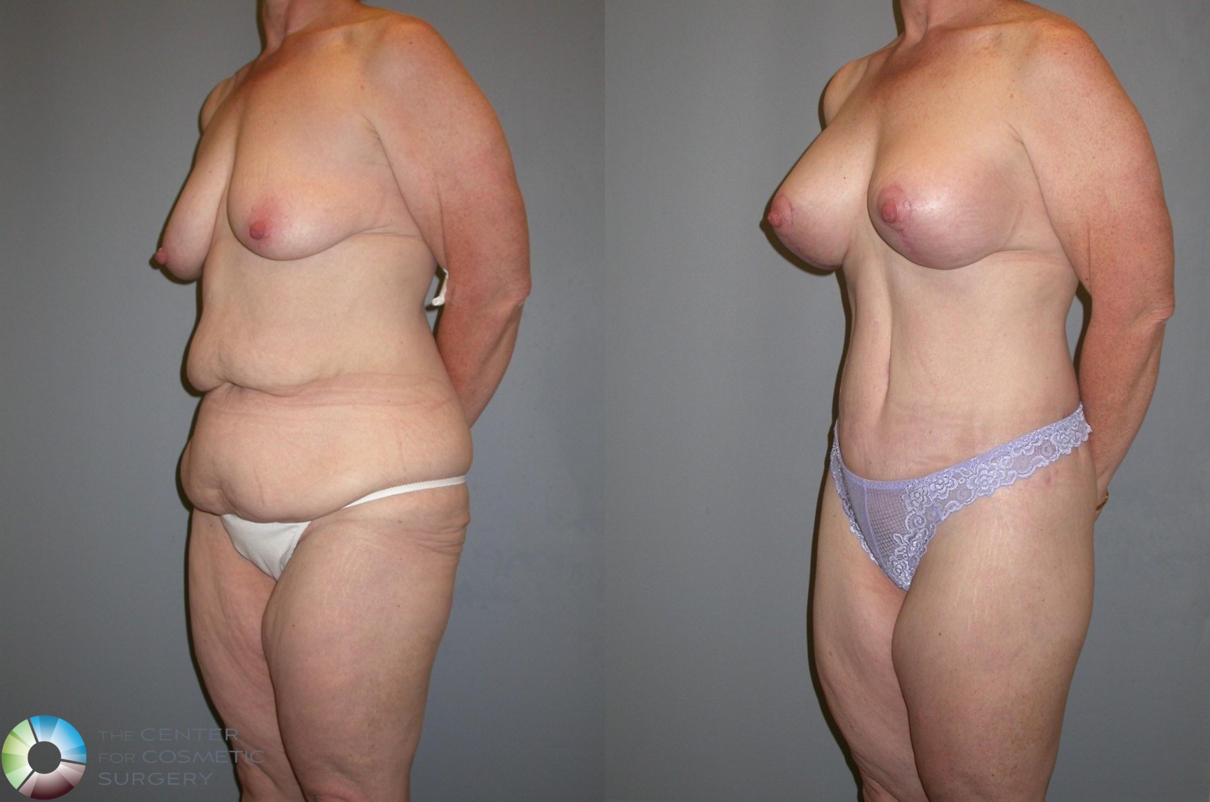 Body Lift Case 105 Before & After View #4 | Golden, CO | The Center for Cosmetic Surgery