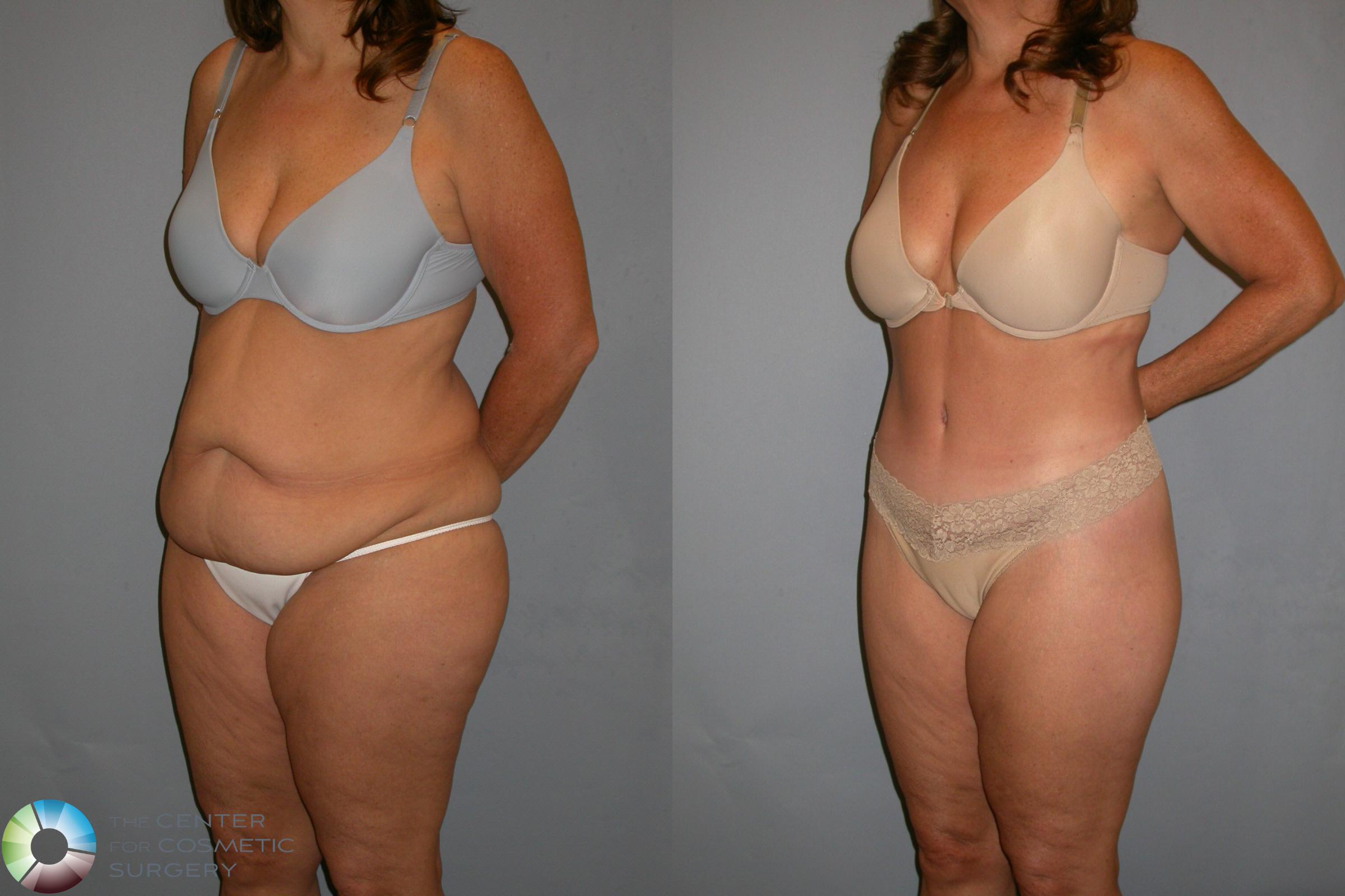 Body Lift Case 110 Before & After View #1 | Golden, CO | The Center for Cosmetic Surgery