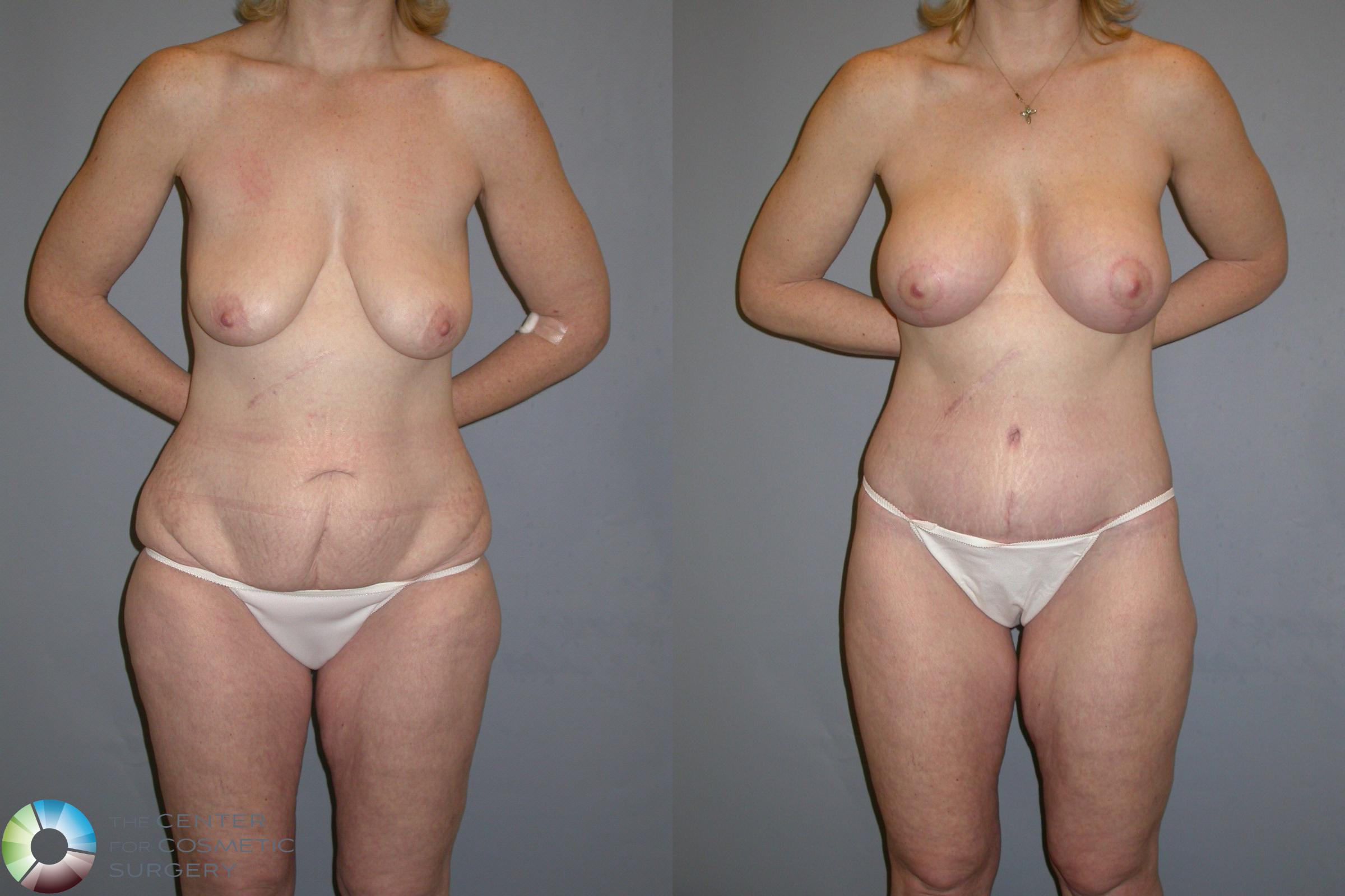 Body Lift Case 111 Before & After View #1 | Golden, CO | The Center for Cosmetic Surgery