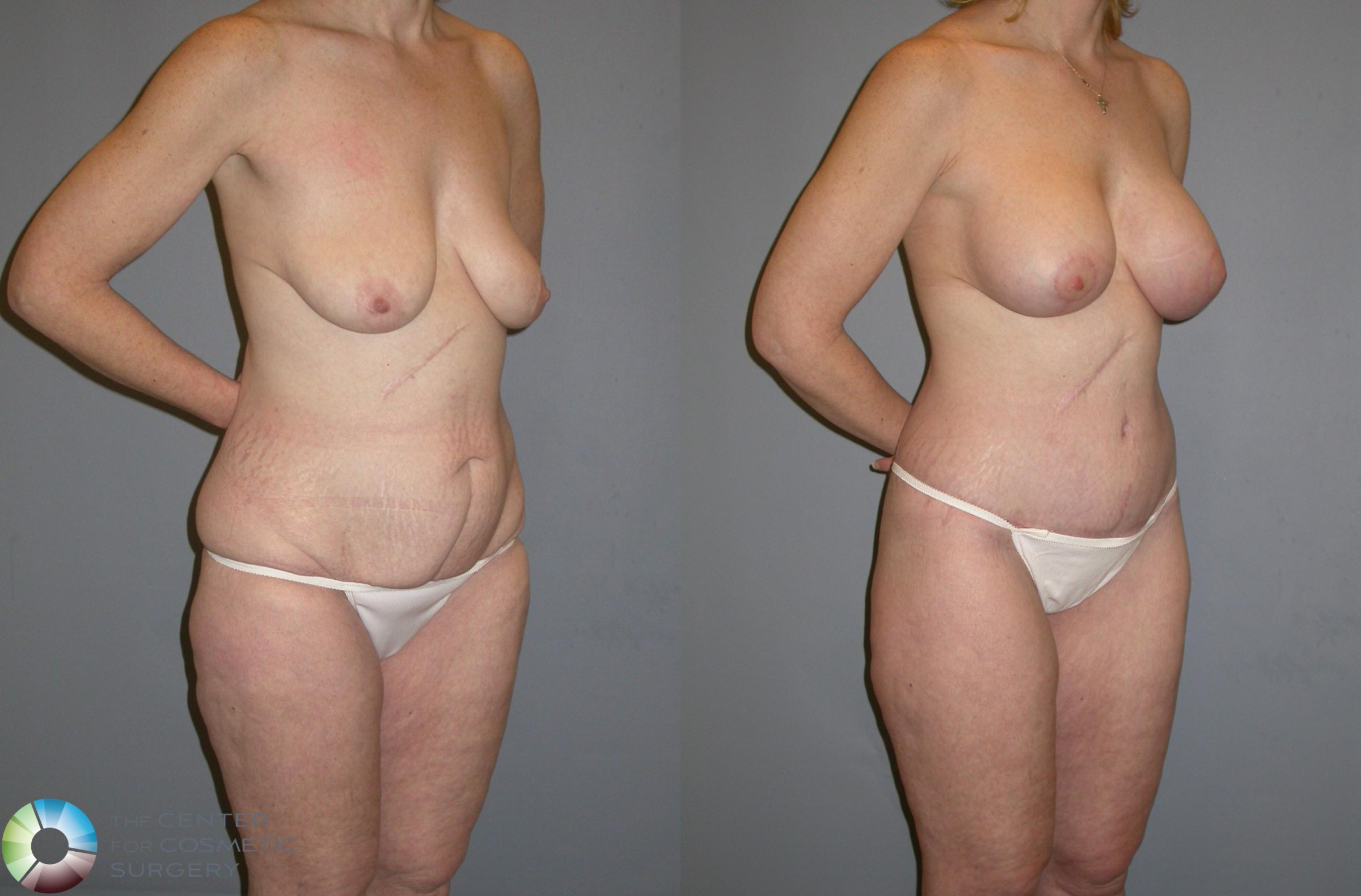 Body Lift Case 111 Before & After View #2 | Golden, CO | The Center for Cosmetic Surgery