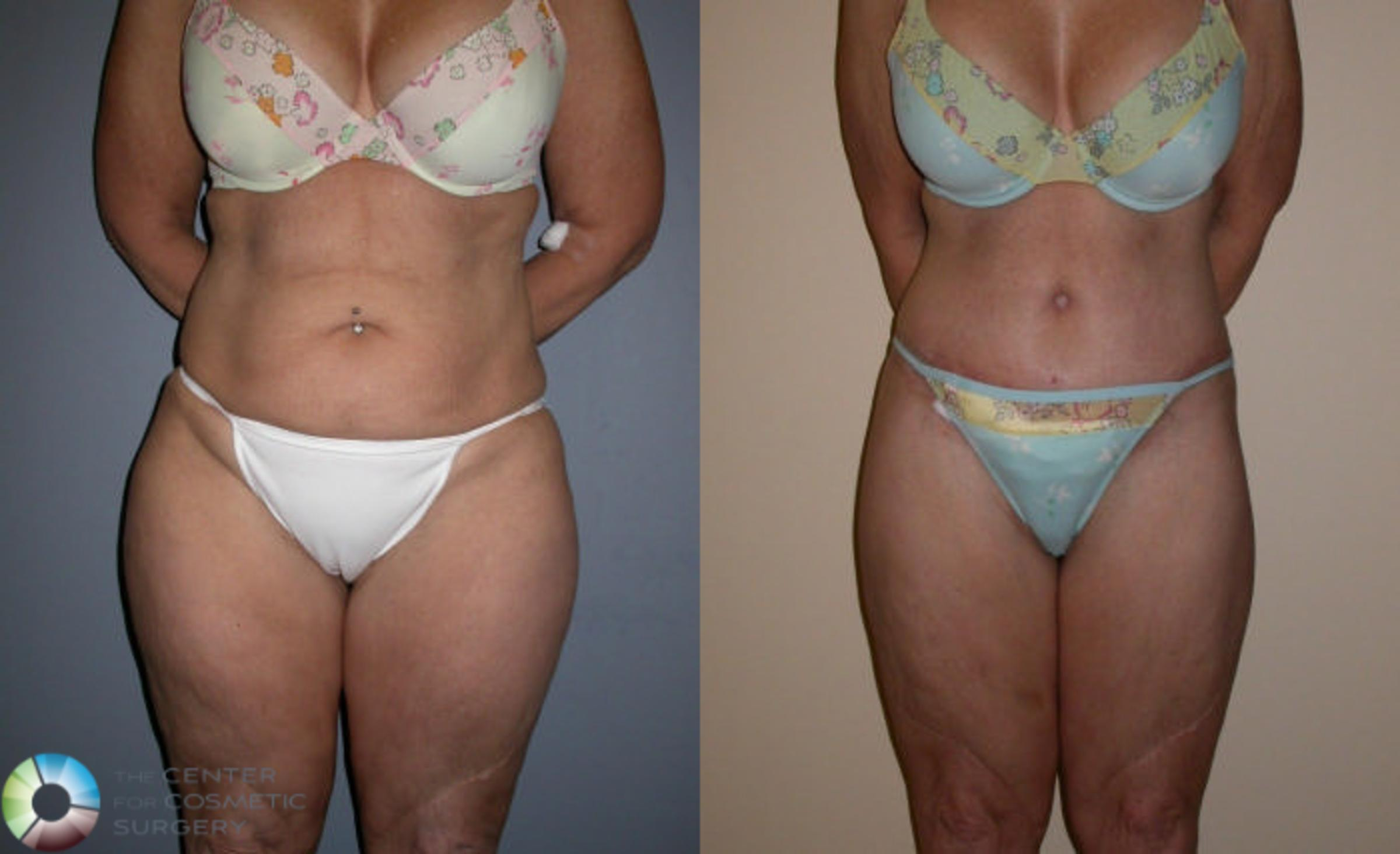 Thigh Lift Case 76 Before & After View #1 | Golden, CO | The Center for Cosmetic Surgery