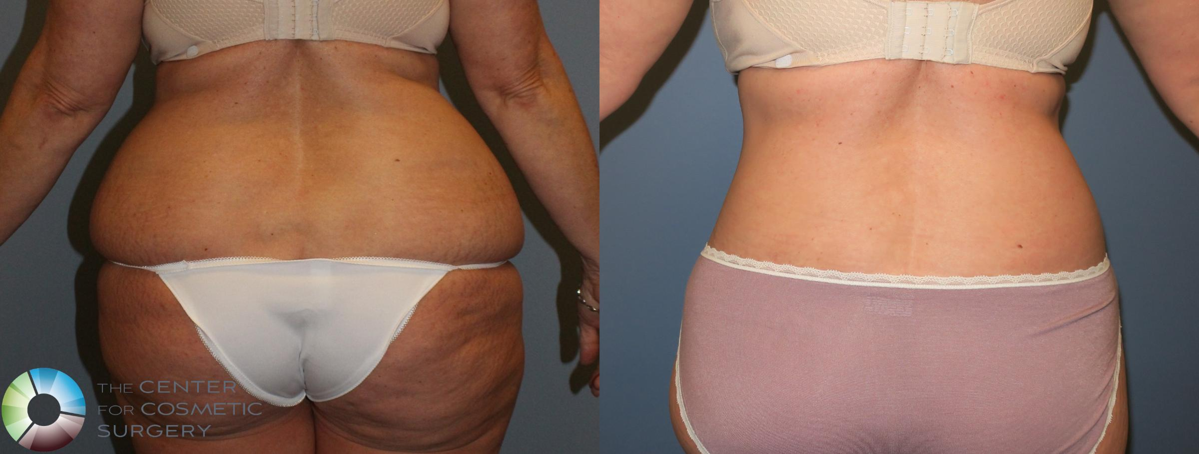Body Lift Case 765 Before & After View #2 | Golden, CO | The Center for Cosmetic Surgery