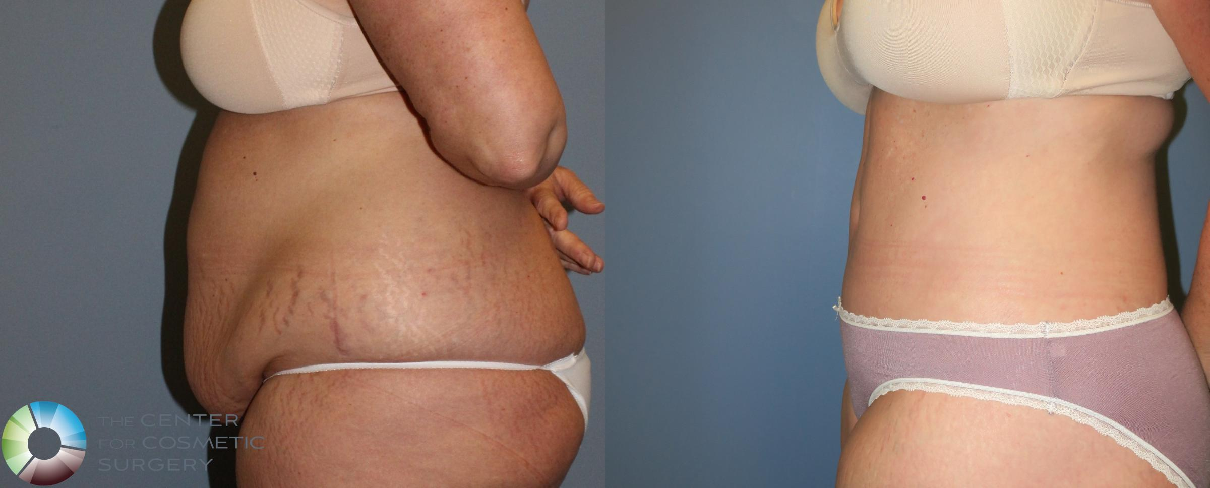 Body Lift Case 765 Before & After View #3 | Golden, CO | The Center for Cosmetic Surgery