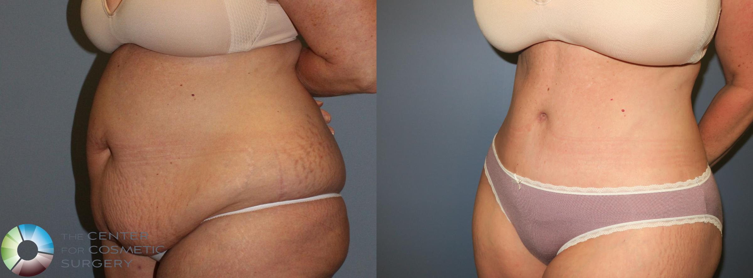 Body Lift Case 765 Before & After View #4 | Golden, CO | The Center for Cosmetic Surgery