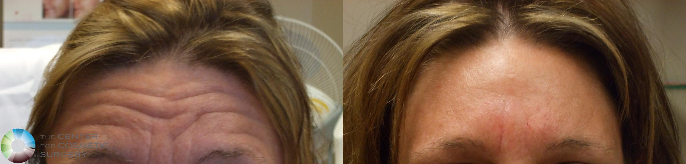 BOTOX® Cosmetic Case 278 Before & After View #1 | Golden, CO | The Center for Cosmetic Surgery