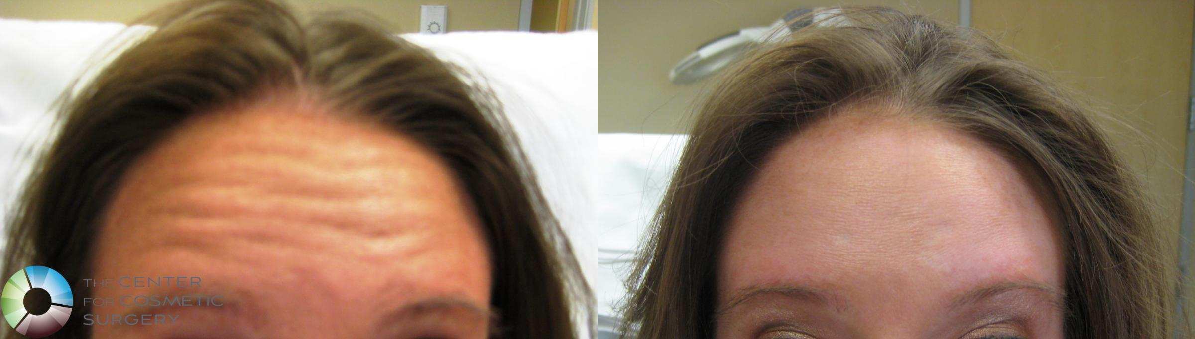 BOTOX® Cosmetic Case 281 Before & After View #1 | Golden, CO | The Center for Cosmetic Surgery