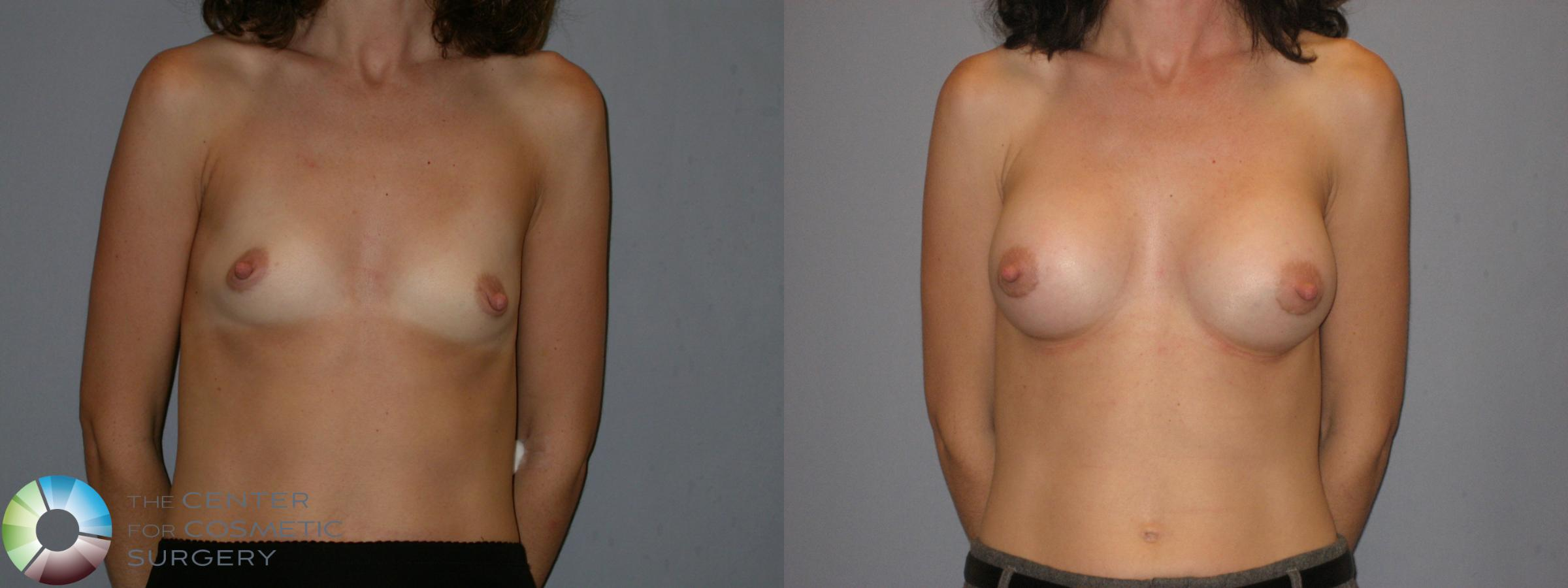 Breast Augmentation Case 113 Before & After View #1 | Golden, CO | The Center for Cosmetic Surgery