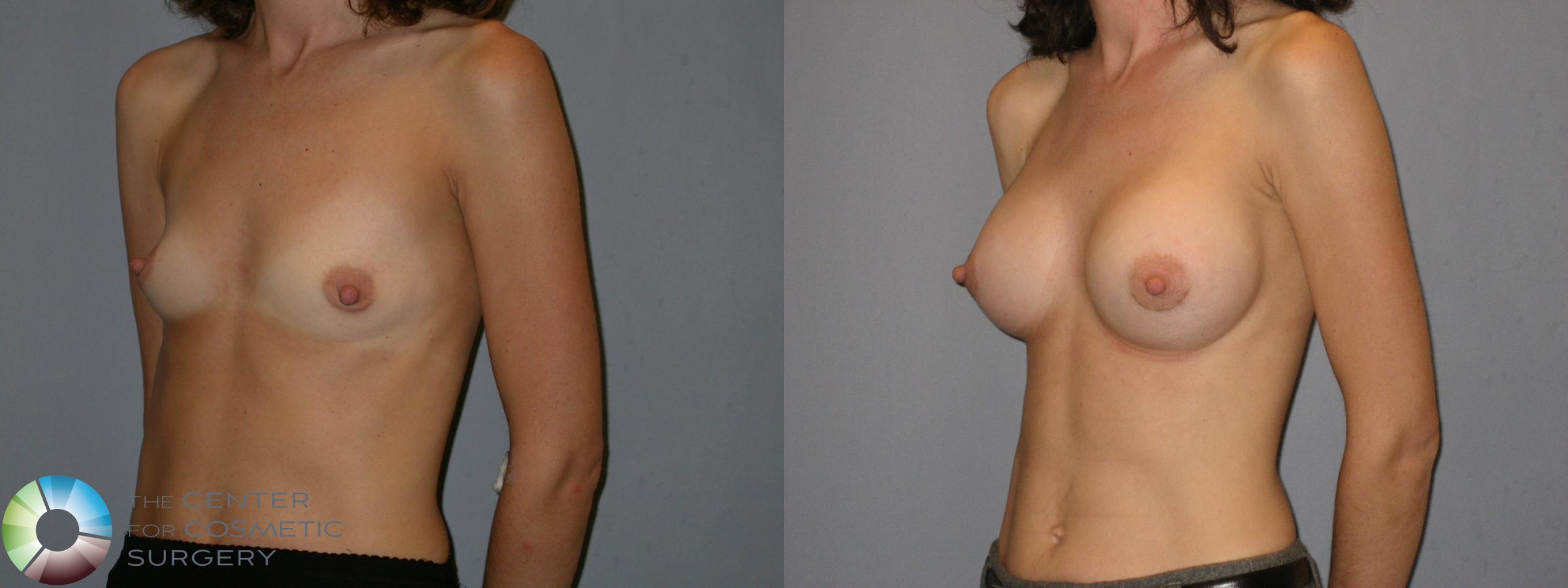 Breast Augmentation Case 113 Before & After View #2 | Golden, CO | The Center for Cosmetic Surgery
