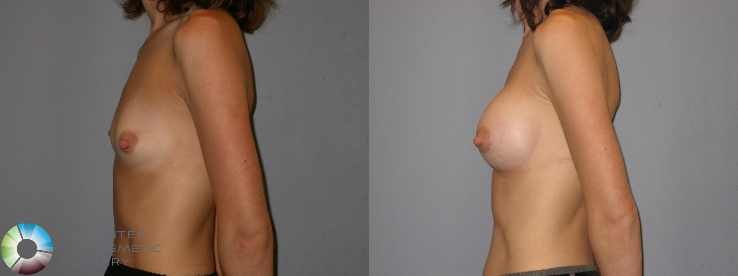 Breast Augmentation Case 113 Before & After View #3 | Golden, CO | The Center for Cosmetic Surgery