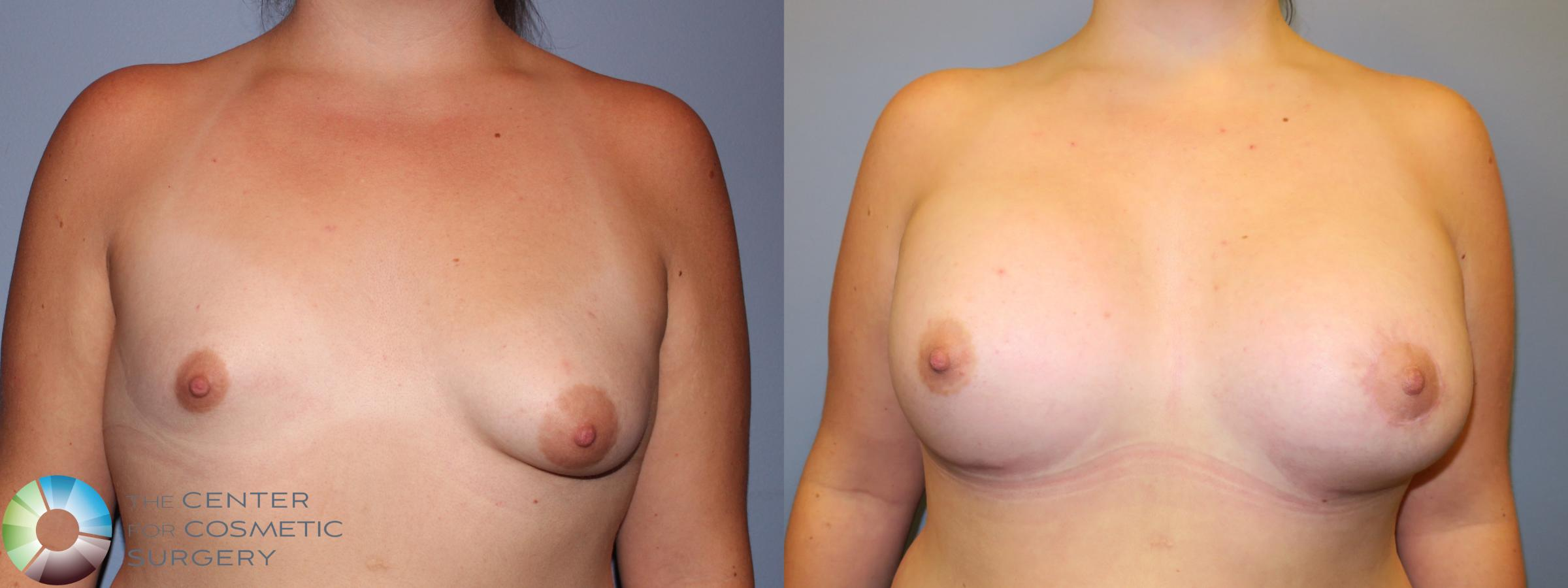 Best Denver Breast Implants Augmentation