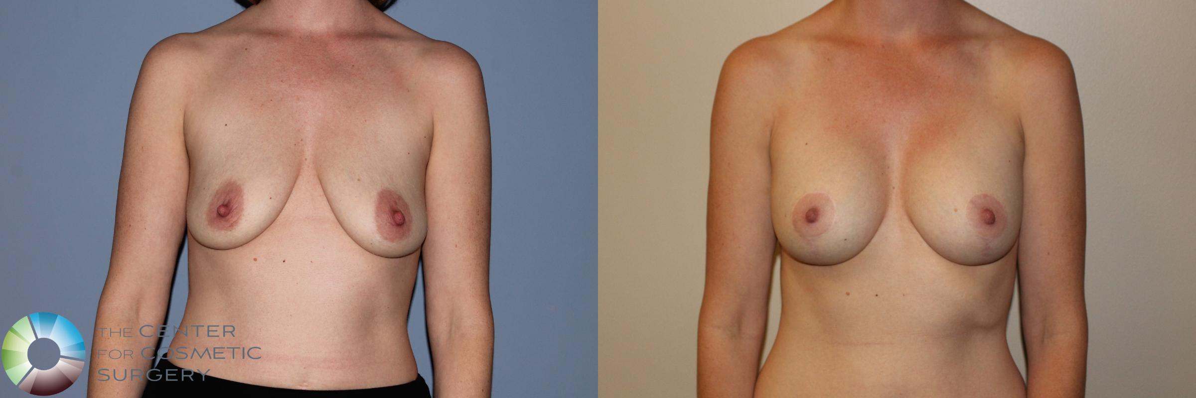 Breast Lift Case 11499 Before & After Front | Golden, CO | The Center for Cosmetic Surgery