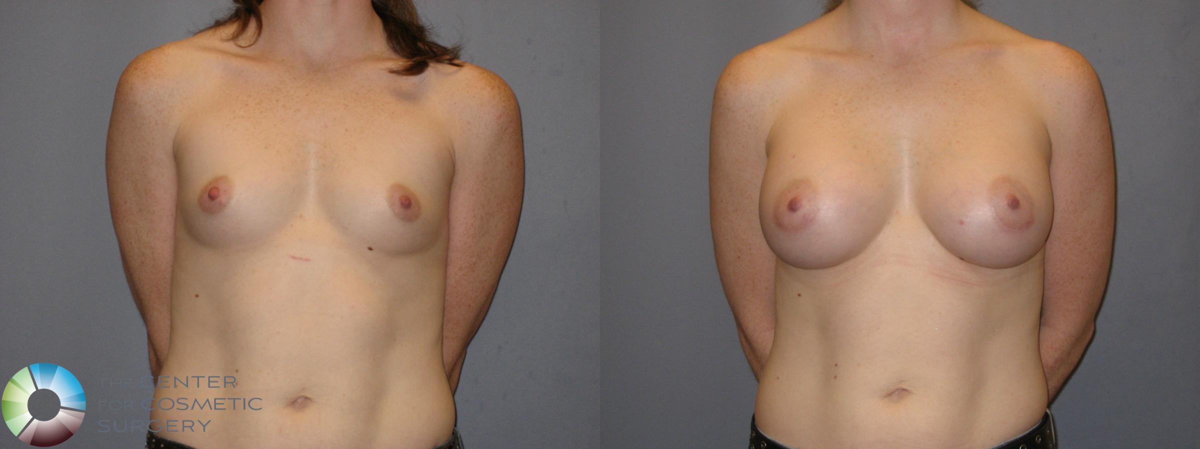 Breast Augmentation Case 121 Before & After View #1 | Golden, CO | The Center for Cosmetic Surgery