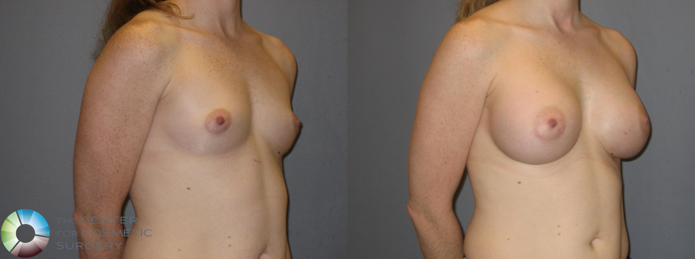 Breast Augmentation Case 121 Before & After View #2 | Golden, CO | The Center for Cosmetic Surgery