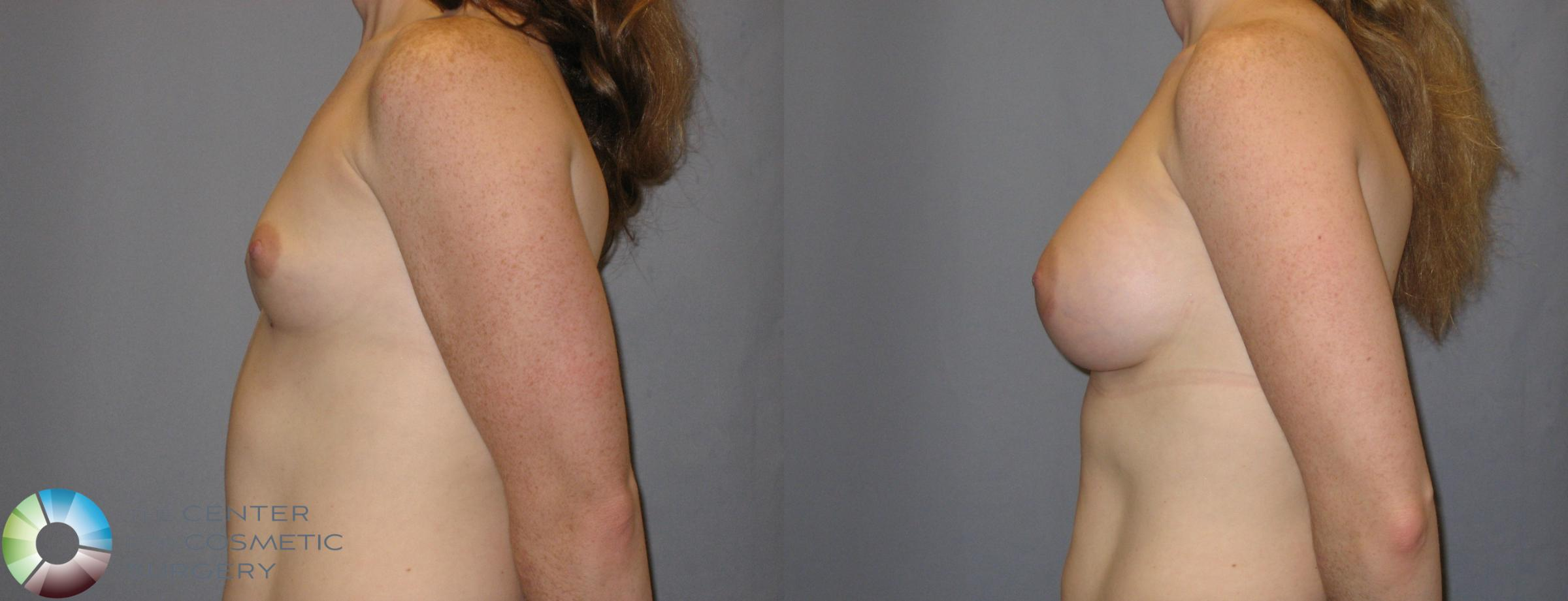 Breast Augmentation Case 121 Before & After View #3 | Golden, CO | The Center for Cosmetic Surgery