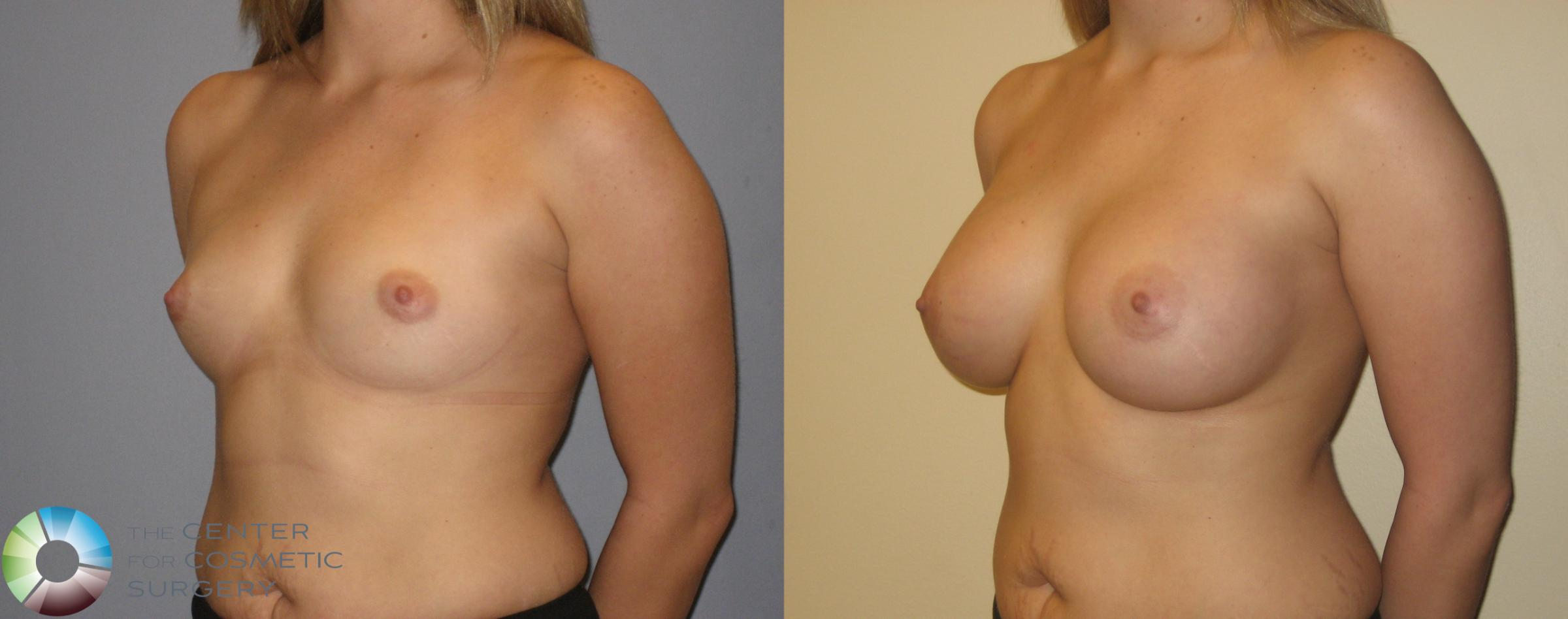 Breast Augmentation Case 137 Before & After View #1 | Golden, CO | The Center for Cosmetic Surgery