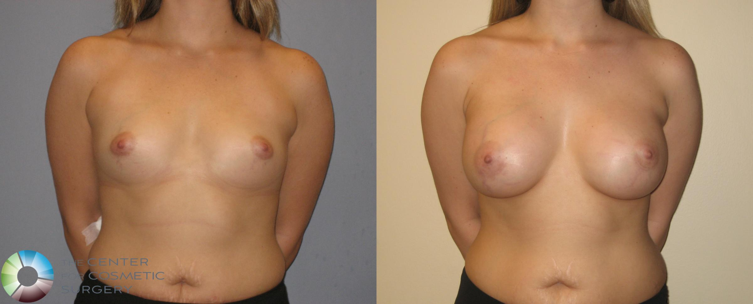 Breast Augmentation Case 137 Before & After View #2 | Golden, CO | The Center for Cosmetic Surgery