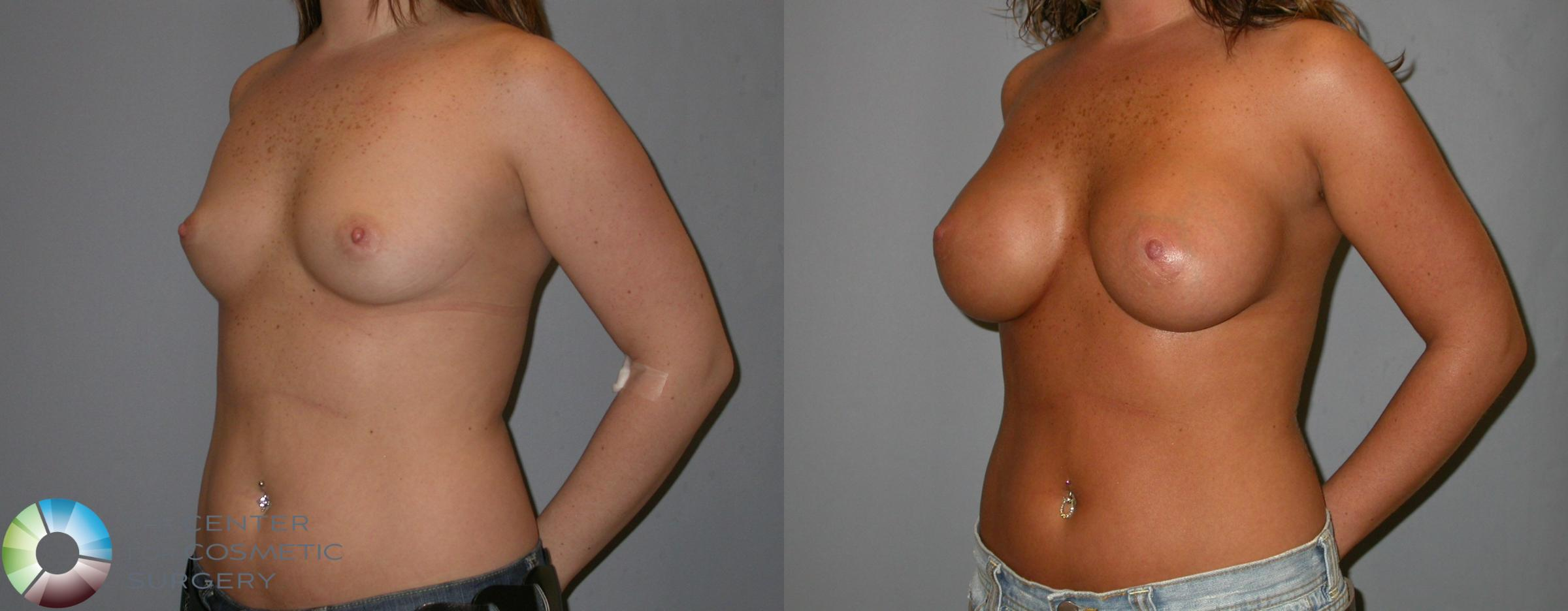 Breast Augmentation Case 139 Before & After View #1 | Golden, CO | The Center for Cosmetic Surgery