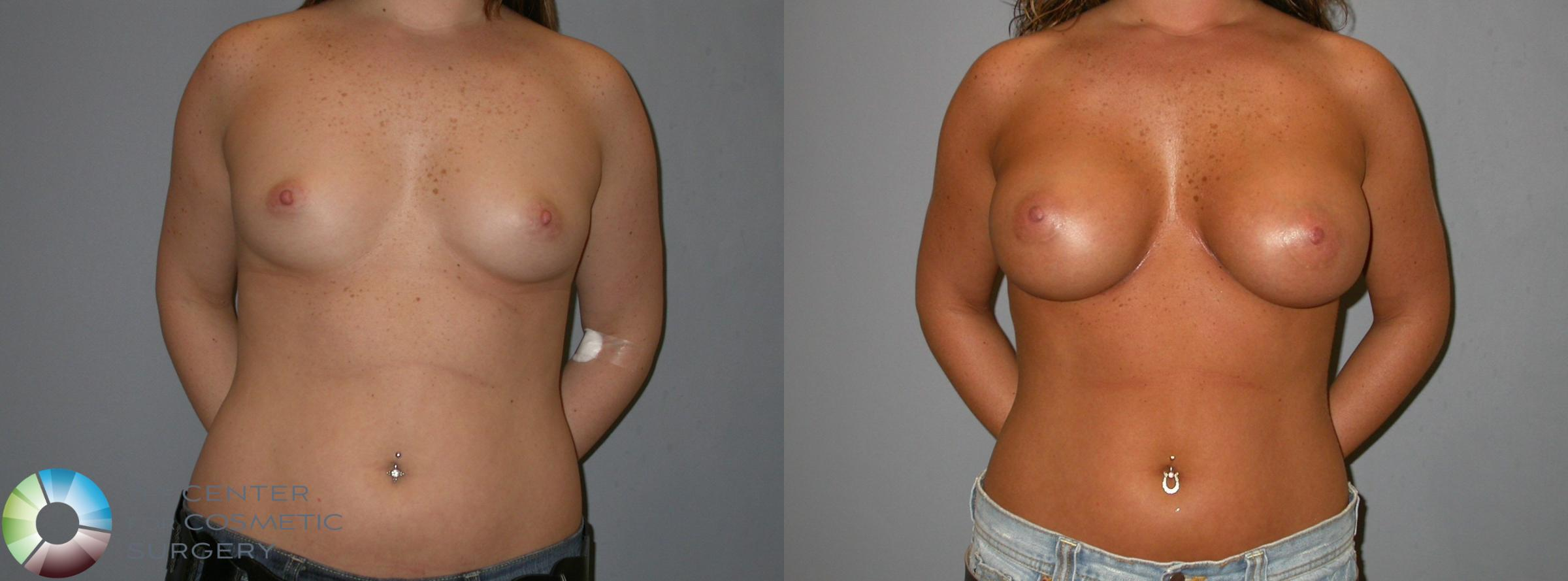 Breast Augmentation Case 139 Before & After View #2 | Golden, CO | The Center for Cosmetic Surgery