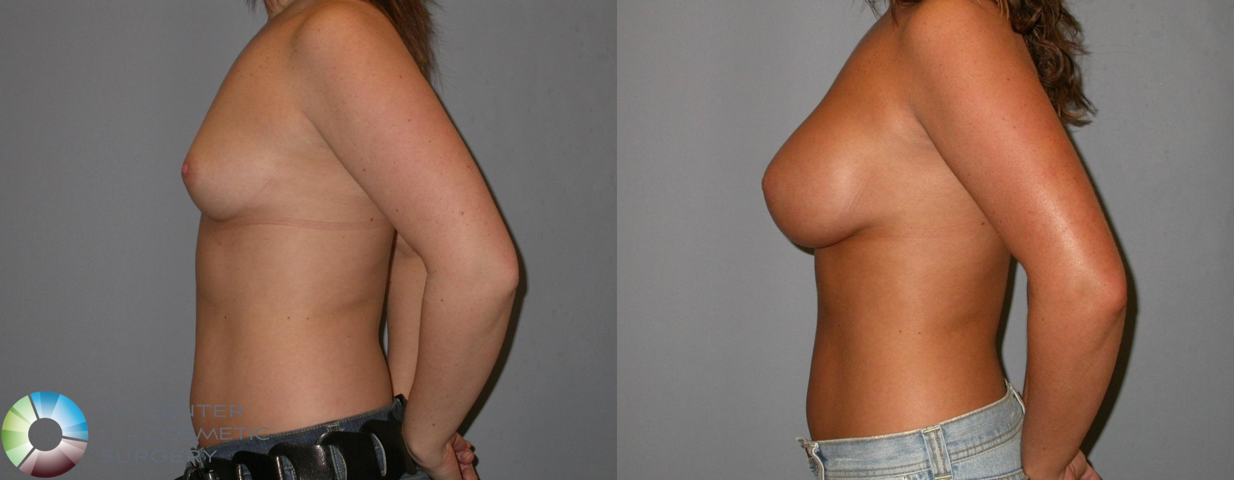 Breast Augmentation Case 139 Before & After View #3 | Golden, CO | The Center for Cosmetic Surgery