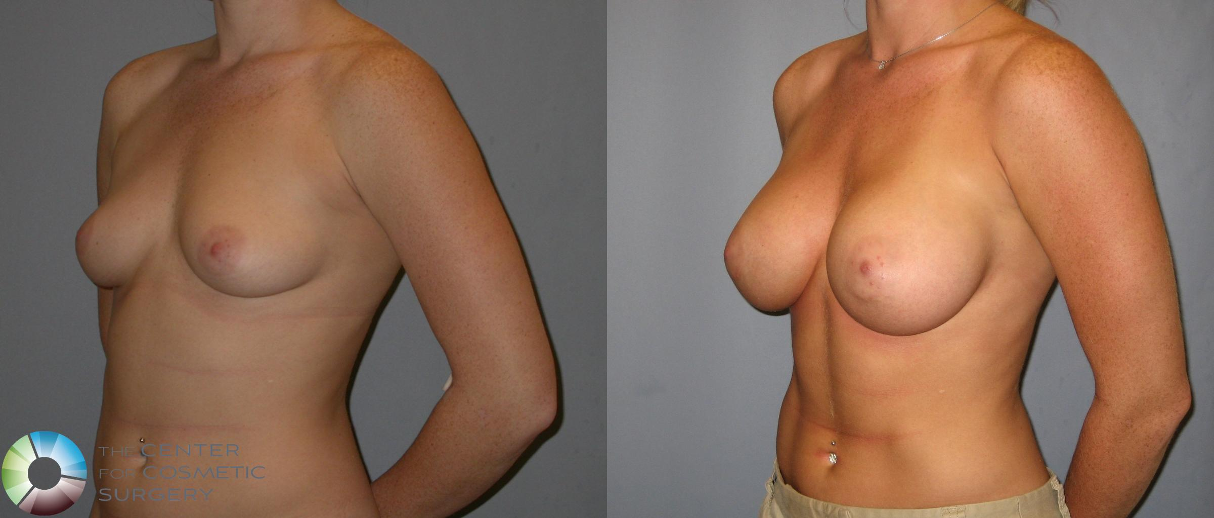 Breast Augmentation Case 143 Before & After View #1 | Golden, CO | The Center for Cosmetic Surgery