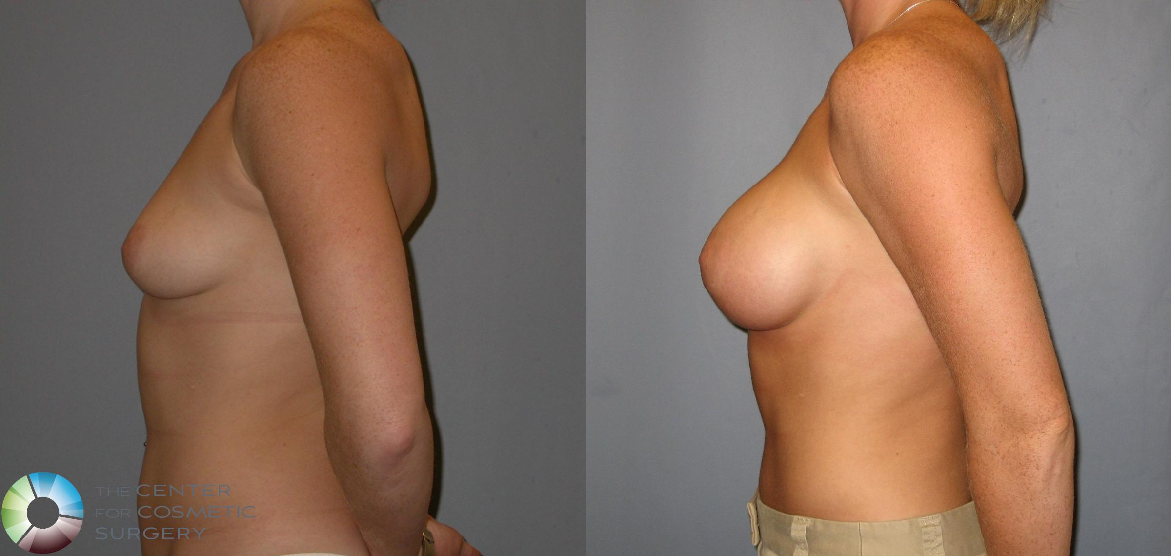 Breast Augmentation Case 143 Before & After View #2 | Golden, CO | The Center for Cosmetic Surgery