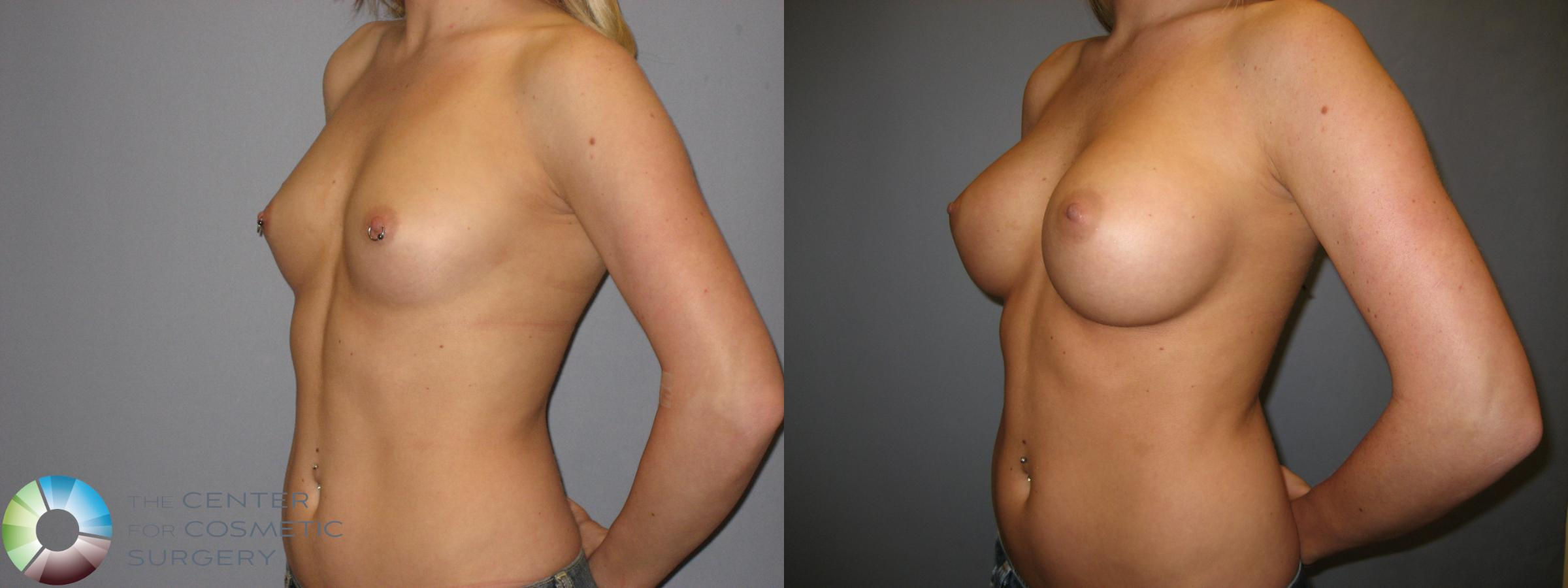 Breast Augmentation Case 172 Before & After View #2 | Golden, CO | The Center for Cosmetic Surgery
