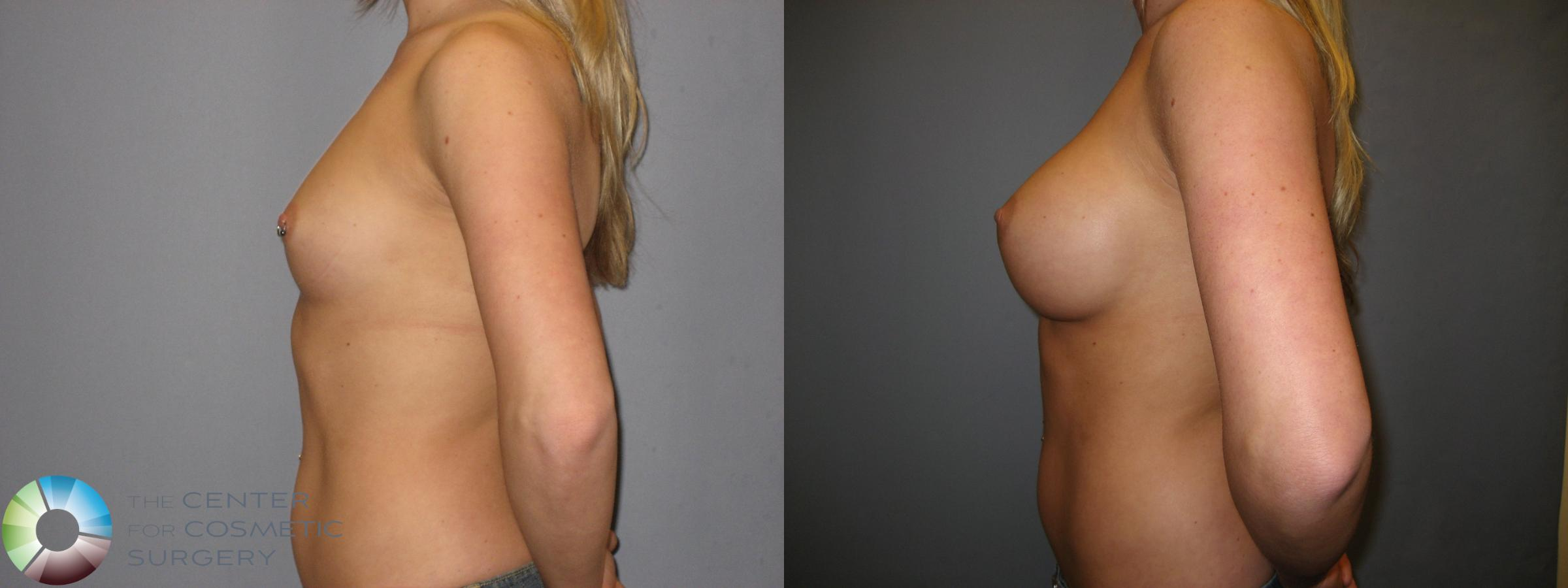 Breast Augmentation Case 172 Before & After View #3 | Golden, CO | The Center for Cosmetic Surgery