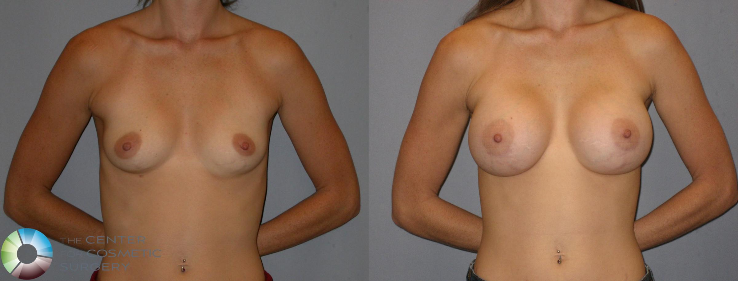 Breast Augmentation Case 175 Before & After View #1 | Golden, CO | The Center for Cosmetic Surgery