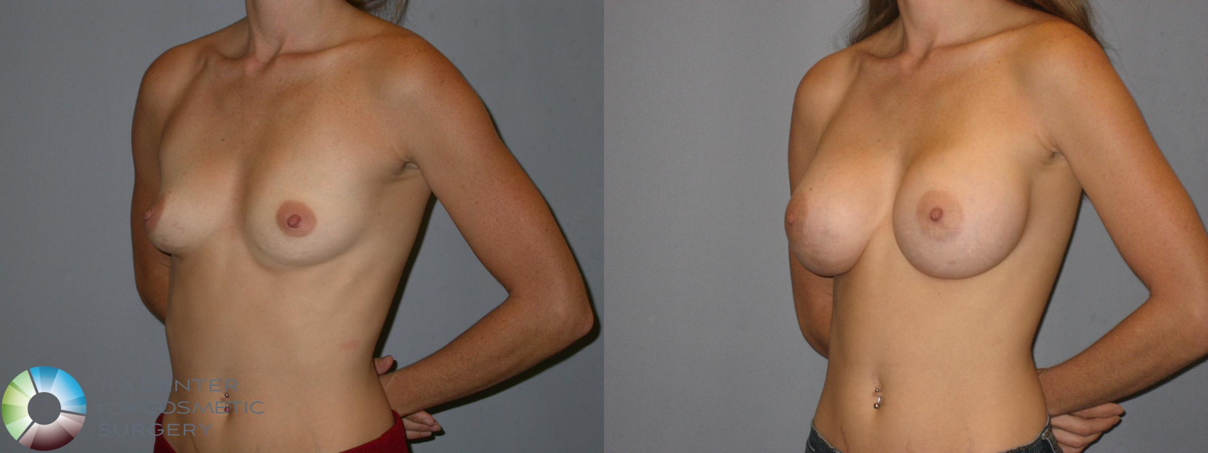 Breast Augmentation Case 175 Before & After View #2 | Golden, CO | The Center for Cosmetic Surgery