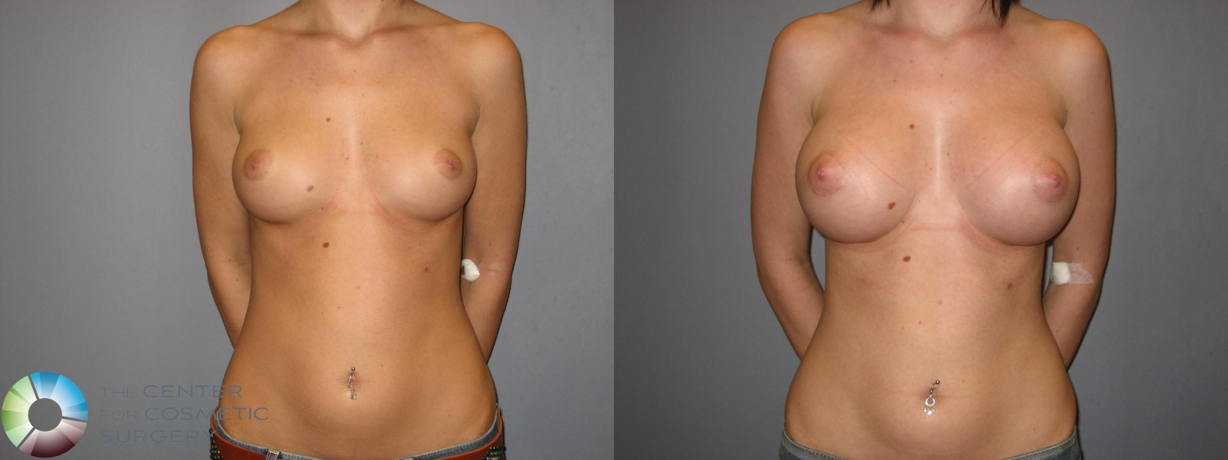 Breast Augmentation Case 177 Before & After View #1 | Golden, CO | The Center for Cosmetic Surgery