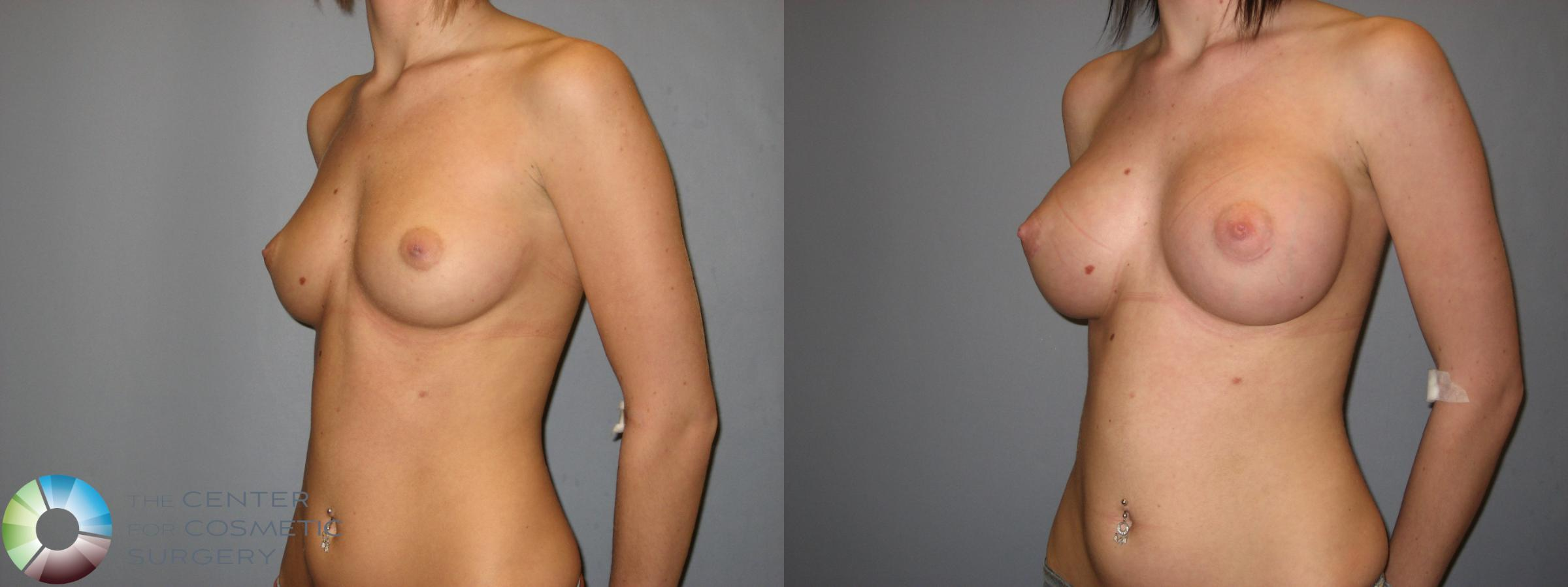 Breast Augmentation Case 177 Before & After View #2 | Golden, CO | The Center for Cosmetic Surgery