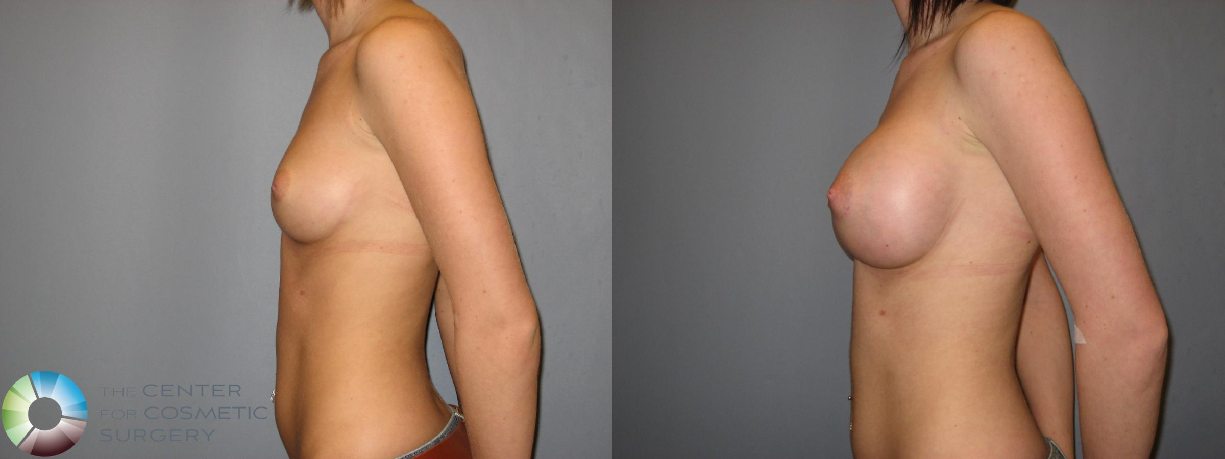 Breast Augmentation Case 177 Before & After View #3 | Golden, CO | The Center for Cosmetic Surgery