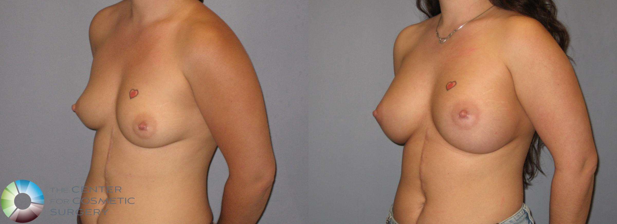 Breast Augmentation Case 183 Before & After View #1 | Golden, CO | The Center for Cosmetic Surgery