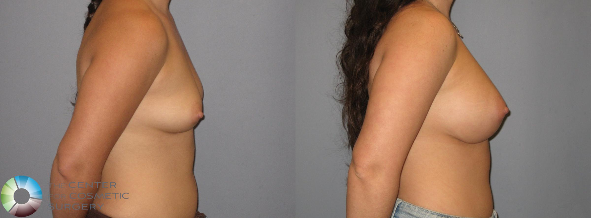 Breast Augmentation Case 183 Before & After View #2 | Golden, CO | The Center for Cosmetic Surgery