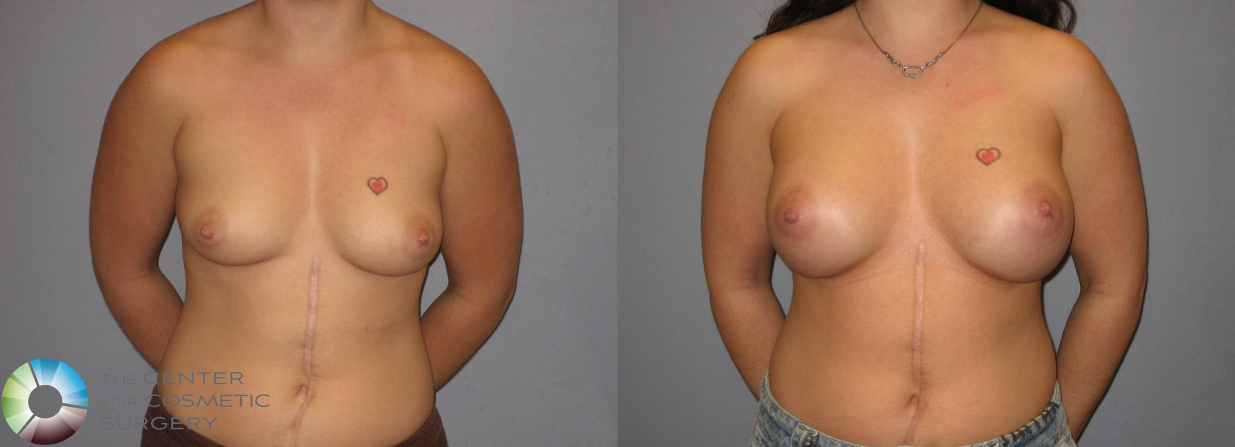 Breast Augmentation Case 183 Before & After View #3 | Golden, CO | The Center for Cosmetic Surgery