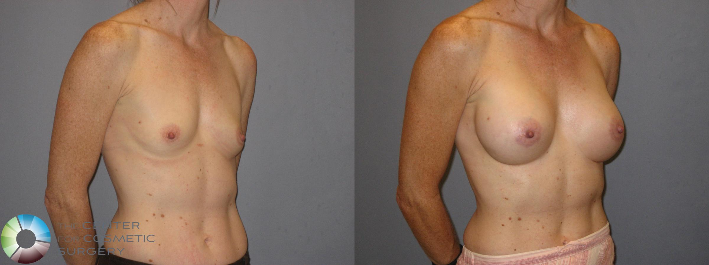 Breast Augmentation Case 185 Before & After View #1 | Golden, CO | The Center for Cosmetic Surgery